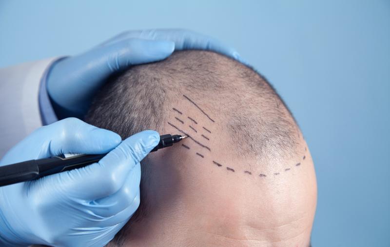 Пересадка волос на зону головы, бороды, бровей и усов. Москва и Санкт-Петербург.