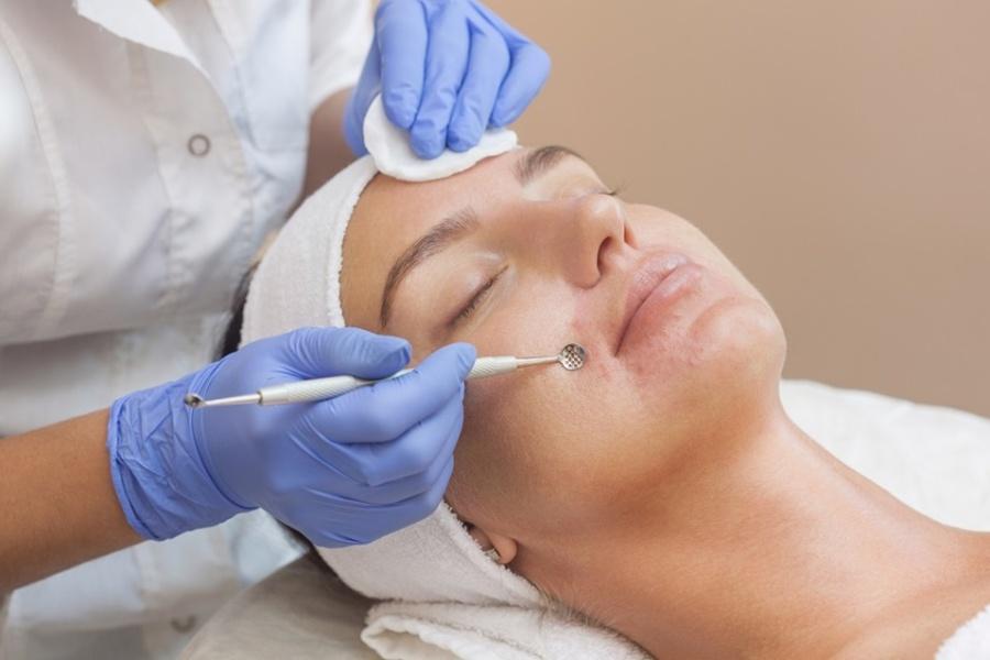 Чистка лица у косметолога: черные точки