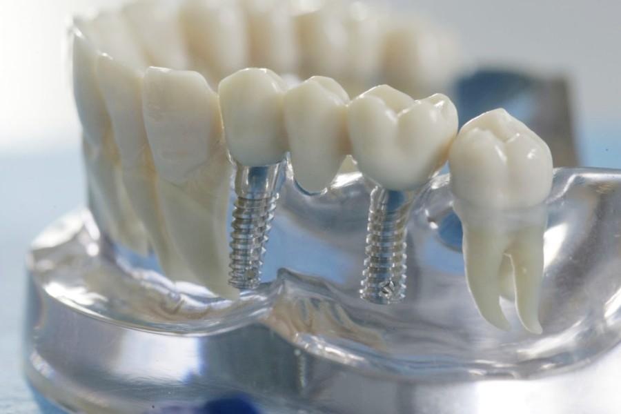 Сколько стоит зубной имплант?